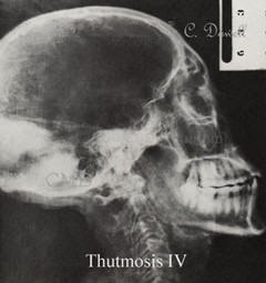 Image of Thutmosis IV  X-ray of mummies skull showing malformation photo collection of Colette Dowell